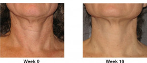 Lift Effekt Perlen von Khanya - Konzentrat für Gesicht und Dekolleté, gegen die Zeichen der Hautalterung